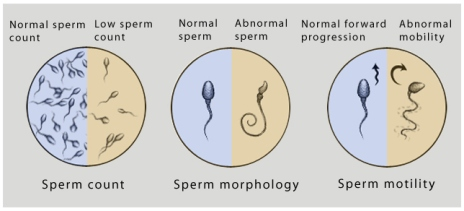 Wazifa to Cure Low Sperm Count
