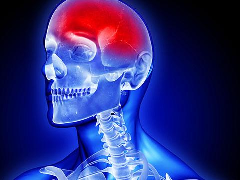 sar dard ka rohani ilaj Headache Problem